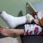 عشرات المصابين في سقوط منصة في مهرجان بكلميم