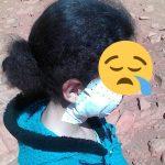 فيديو ..  خنزير بري يـُرسل تلميذة صغيرة بإقليم سيدي إفني إلى المستشفى
